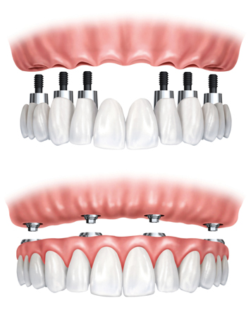 Prothese complete sur implant
